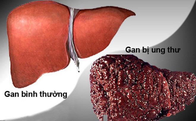 Ung Thư Gan - Triệu chứng, Dấu hiệu bệnh ung thư gan