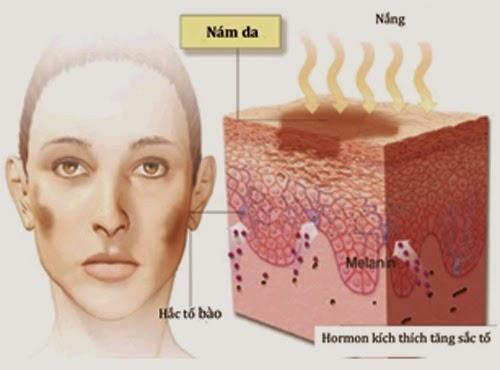 Nám da - Nguyên nhân và cách trị nám tàn nhang