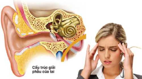 Rối loạn tiền đình - Nguyên nhân, triệu chứng và cách chữa bệnh