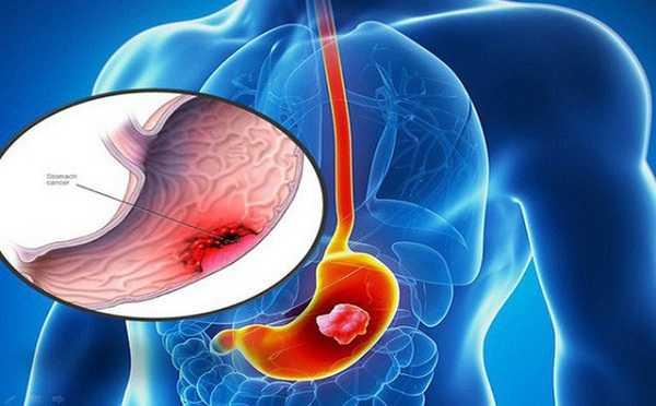 Ung thư dạ dày - Dấu hiệu, nguyên nhân và cách điều trị