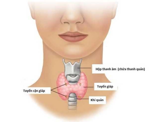 Ung thư tuyến giáp - Nguyên nhân, dấu hiệu triệu ứng bệnh