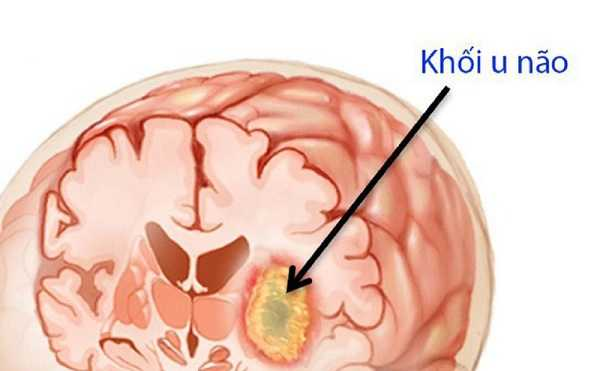 Những dấu hiệu triệu chứng cảnh báo bệnh u não
