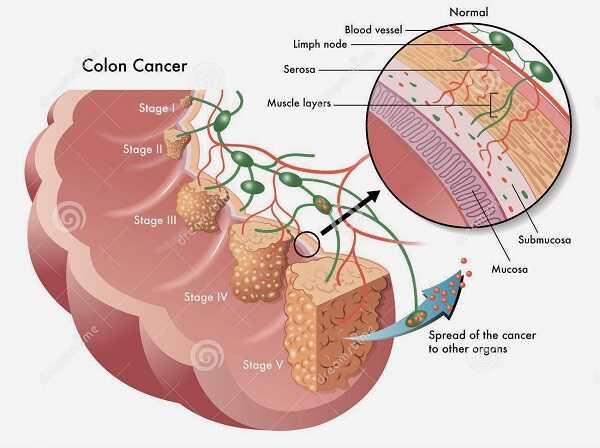 Bệnh ung thư trực tràng và điều cần biết